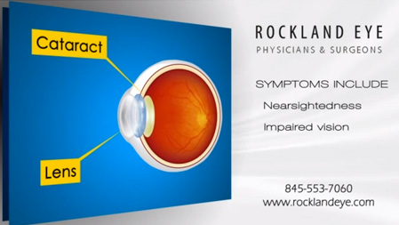Cataract surgery marketing video